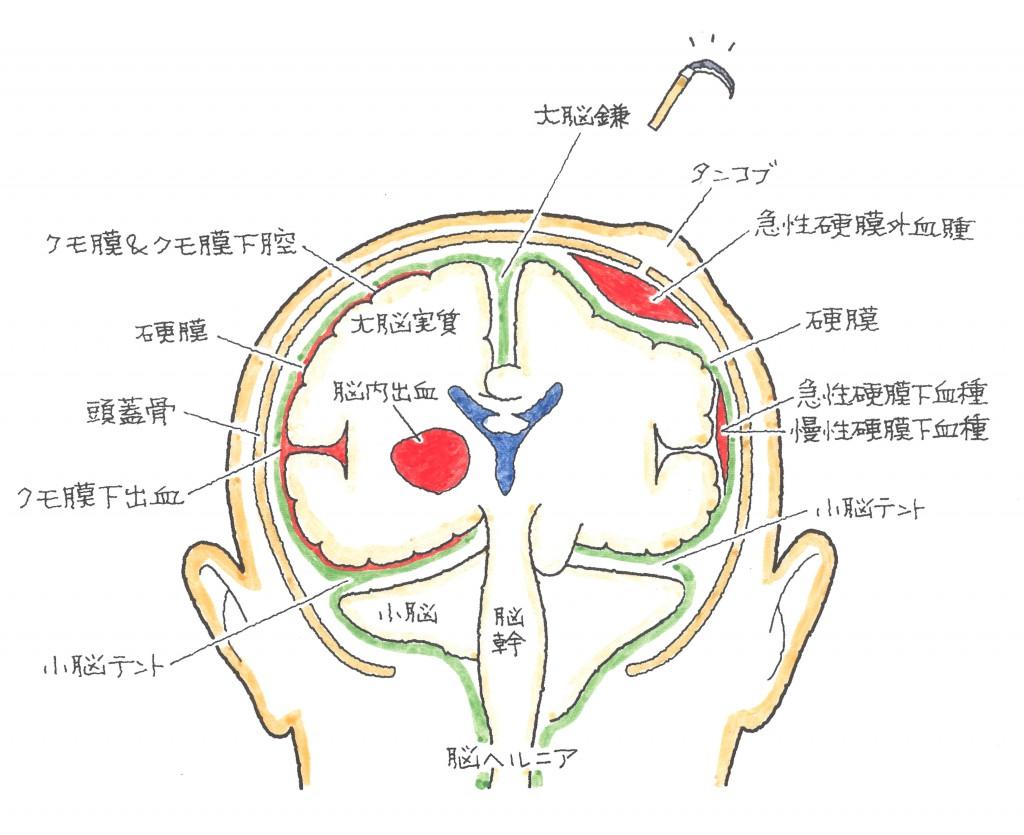 慢性 硬 膜 下 血腫 後遺症 不可忽視的頭部外傷後遺症----- - kgh.com.tw