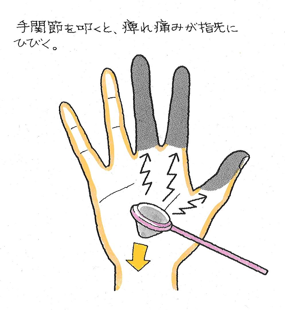 しびれ 親指